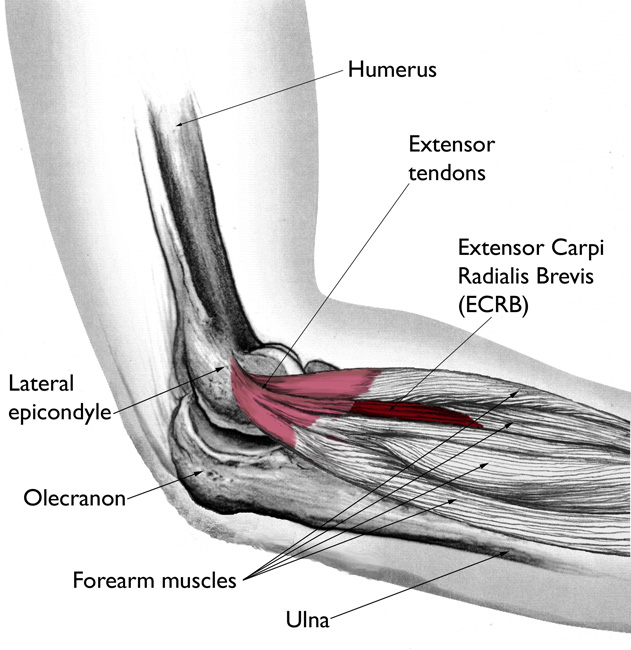 Elbow Epicondylitis Ml Massage Therapy In Geraldton